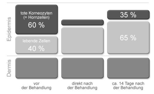 Mikrodermabrasion REVIDERM Burghausen / Kosmetikstudio hautFOCUS Bayern