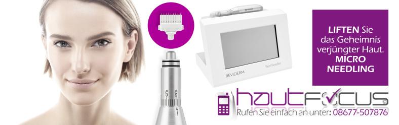 Microneedling Burghausen Kosmetikstudio hautfocus Bayern - Wie feine Nadeln Ihr Gesicht verschönern können.